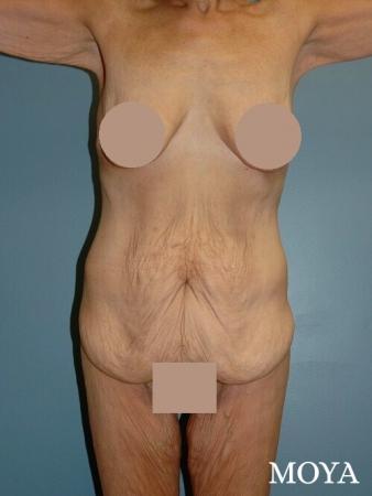 Corset Body Lift® (standard): BMI 20 - Before Image