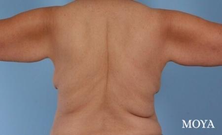 Back Lift: Patient 3 - Before Image