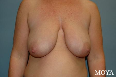 Breast Augmentation With Lift: Patient 9 - Before Image