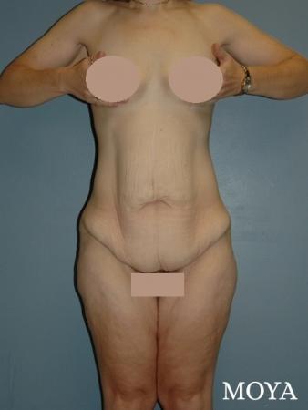 Corset Body Lift® (standard): BMI 24 - Before Image