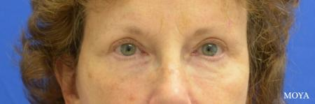 Fillers: Patient 7 - After Image