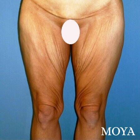 Inner Thigh Tuck - Before Image