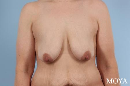 Breast Augmentation With Lift: Patient 6 - Before Image
