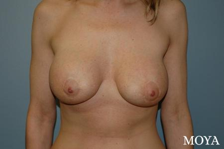 Breast Augmentation With Lift: Patient 2 - After Image