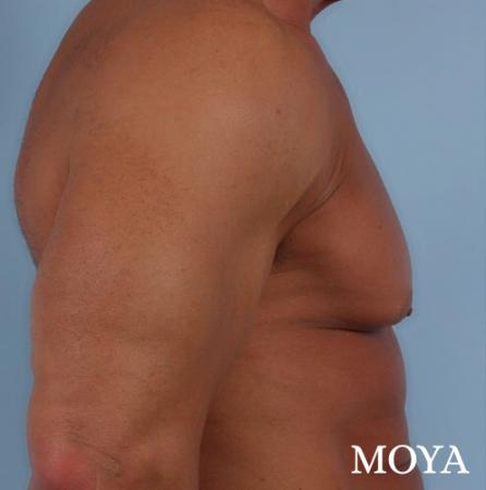 Male Breast Reduction: Patient 5 - Before Image 1