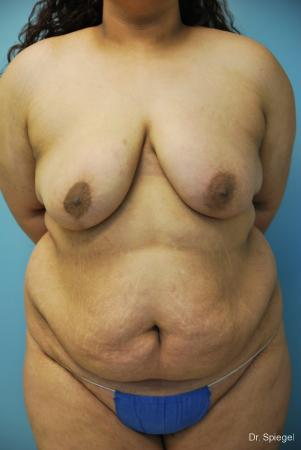 Breast Asymmetry: Patient 1 - After Image