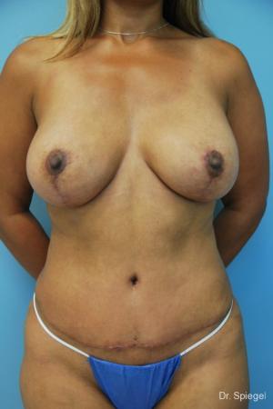 Breast Implant Exchange: Patient 1 - After Image