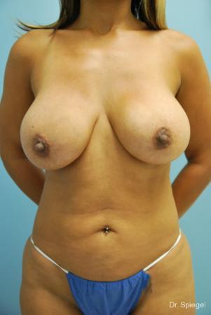 Breast Implant Exchange: Patient 1 - Before Image