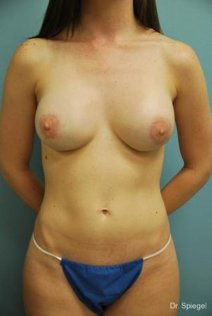 Latissimus Flap: Patient 1 - After Image