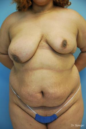 Breast Asymmetry: Patient 1 - Before Image