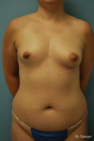 Breast Asymmetry: Patient 2 - Before Image