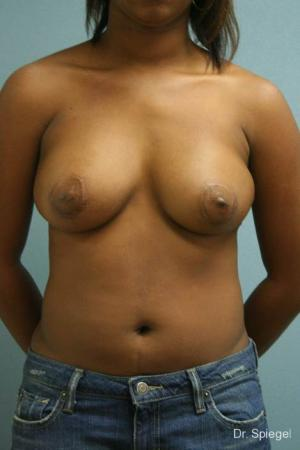 Latissimus Flap: Patient 2 - After Image