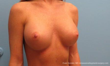 Philadelphia Breast Augmentation 9179 -  After Image 2