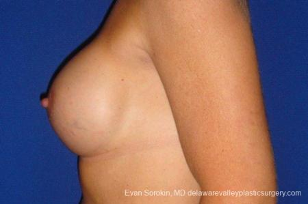 Philadelphia Breast Augmentation 9412 -  After Image 5
