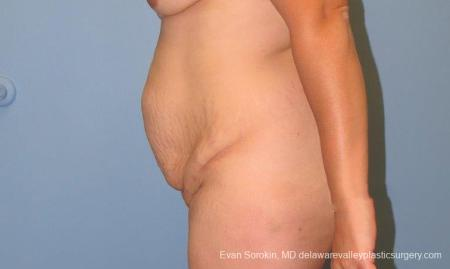 Philadelphia Abdominoplasty 10122 - Before and After Image 5
