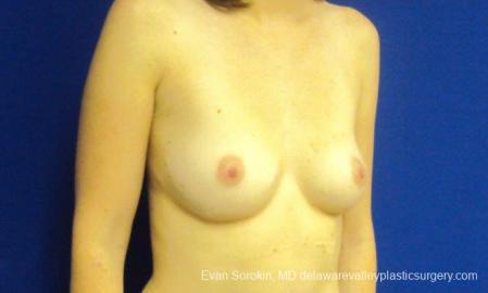 Philadelphia Breast Augmentation 8777 - Before Image 2