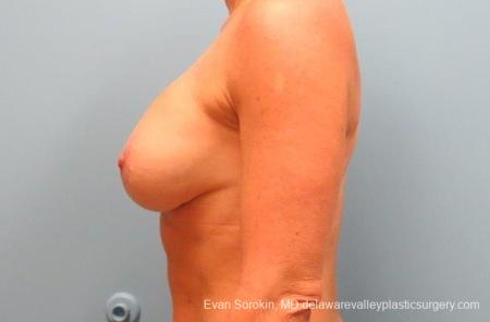 Philadelphia Breast Lift and Augmentation 8690 -  After Image 5