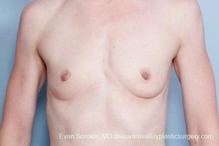 Philadelphia Breast Augmentation 9169 - Before Image 1