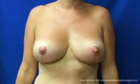 Philadelphia Breast Reduction 12512 - After Image
