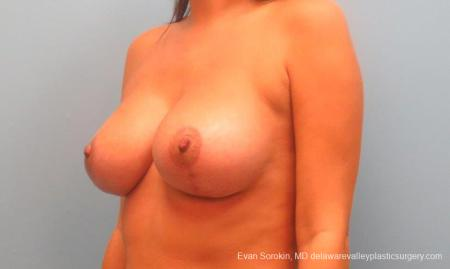 Philadelphia Breast Lift and Augmentation 10247 -  After Image 4