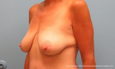 Philadelphia Breast Lift and Augmentation 9486 - Before Image 4