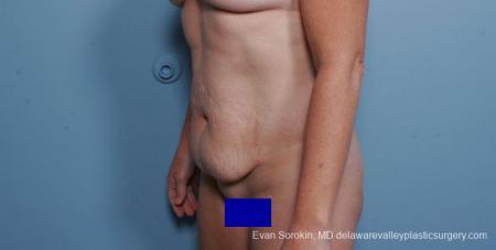 Philadelphia Abdominoplasty 9315 - Before Image 2