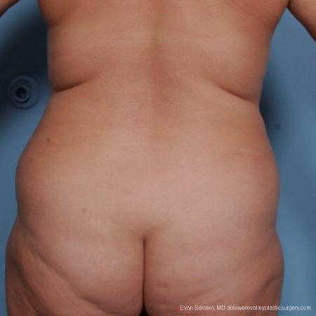 Philadelphia Liposuction 9481 - Before and After Image 4