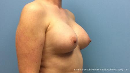 Philadelphia Breast Augmentation 13181 -  After Image 2