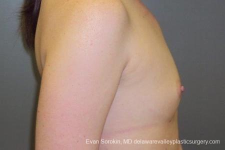 Philadelphia Breast Augmentation 8669 - Before Image 4