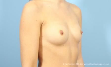 Philadelphia Breast Augmentation 8641 - Before Image 2