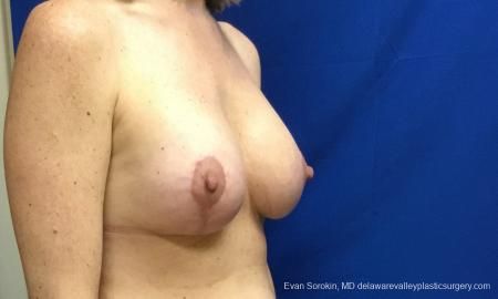 Philadelphia Breast Lift and Augmentation 10814 -  After Image 2