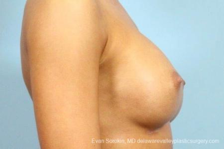 Philadelphia Breast Augmentation 8769 -  After Image 4
