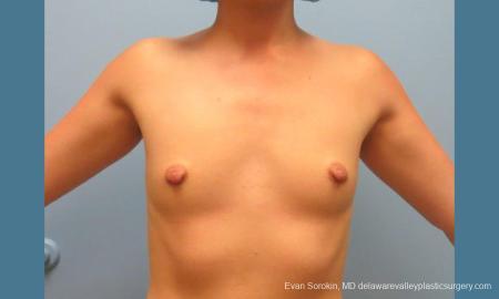Philadelphia Breast Augmentation 10193 - Before Image 1