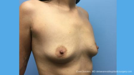 Breast Augmentation: Patient 137 - Before Image 4