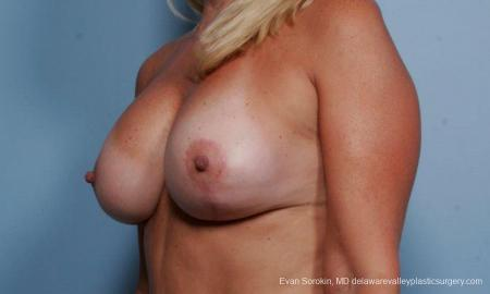 Philadelphia Breast Lift and Augmentation 9375 -  After Image 4
