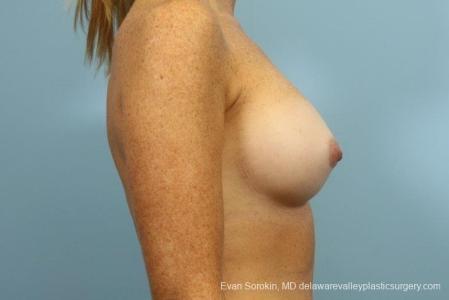 Philadelphia Breast Augmentation 8654 -  After Image 4