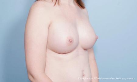 Philadelphia Breast Augmentation 9418 -  After Image 2