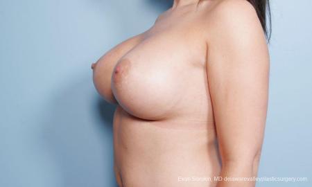 Philadelphia Breast Augmentation 9172 -  After Image 4