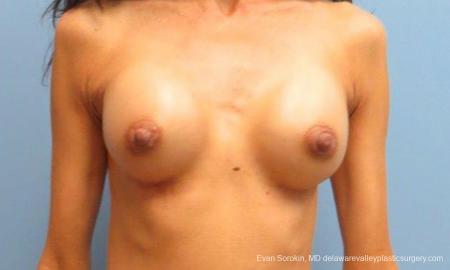 Philadelphia Breast Augmentation 9424 -  After Image 1