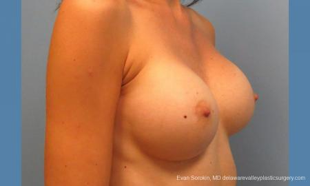 Philadelphia Breast Augmentation 9417 -  After Image 2