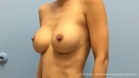 Philadelphia Breast Augmentation 13178 - Before Image 4