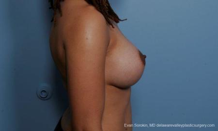 Philadelphia Breast Augmentation 9305 -  After Image 3