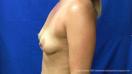 Philadelphia Breast Augmentation 13173 - Before and After Image 5