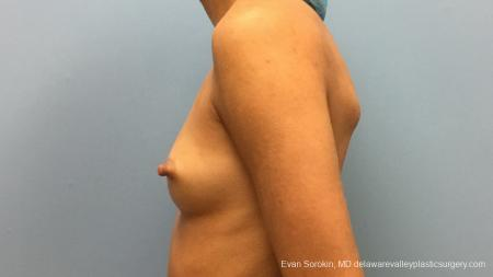 Philadelphia Breast Augmentation 13176 - Before and After Image 5