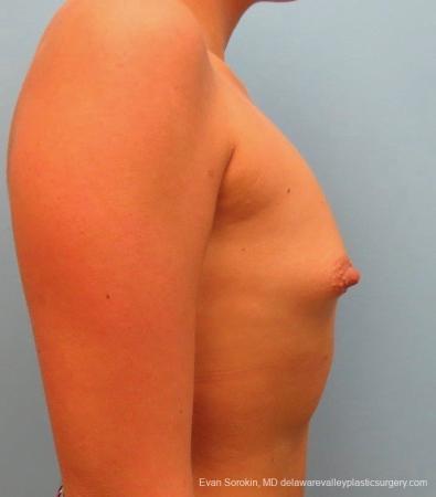 Philadelphia Breast Augmentation 8826 - Before Image 4