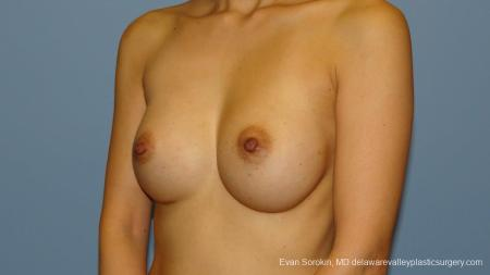 Philadelphia Breast Augmentation 9291 -  After Image 4