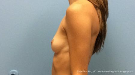 Philadelphia Breast Augmentation 13180 - Before and After Image 5