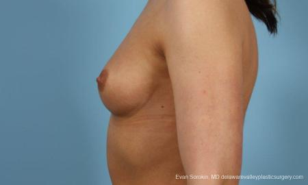 Philadelphia Breast Augmentation 8643 - Before and After Image 5