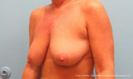 Philadelphia Breast Lift and Augmentation 9398 - Before Image 4