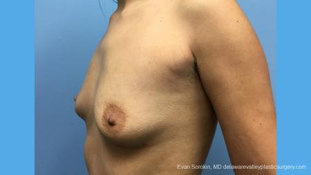 Breast Augmentation: Patient 137 - Before Image 2